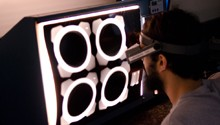 Radiography / Computerized Radiography